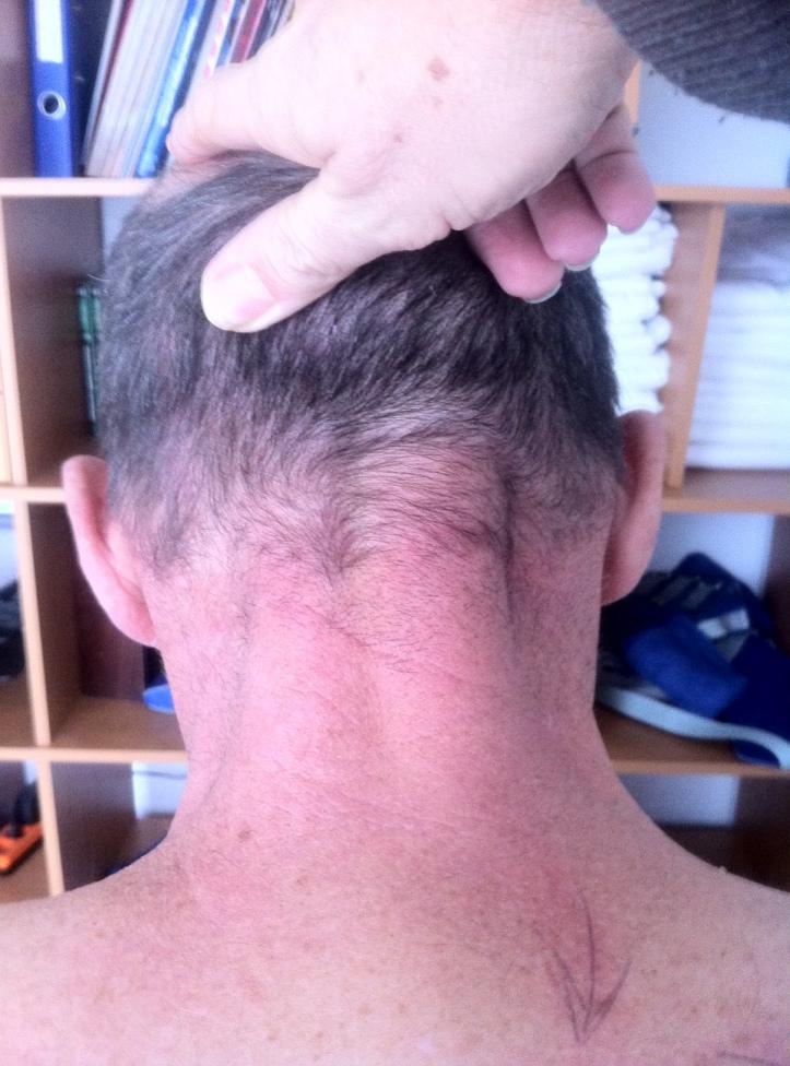 parésie spinaux cervicaux