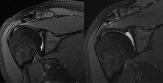 4 kilos de traction axiale de l'épaule à l'IRM