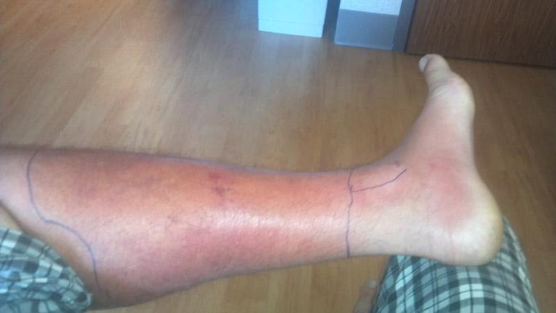Cellulitis_Of_The_Leg