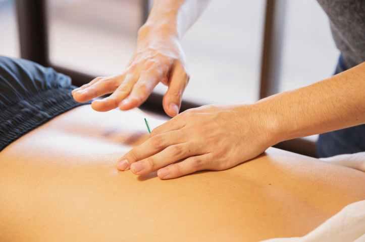 therapeute piquant la peau avec des aiguilles pendant la procedure de traitement